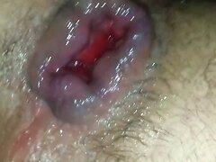 vegetable insertion
