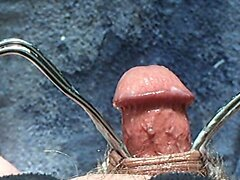 Foreskin with cream
